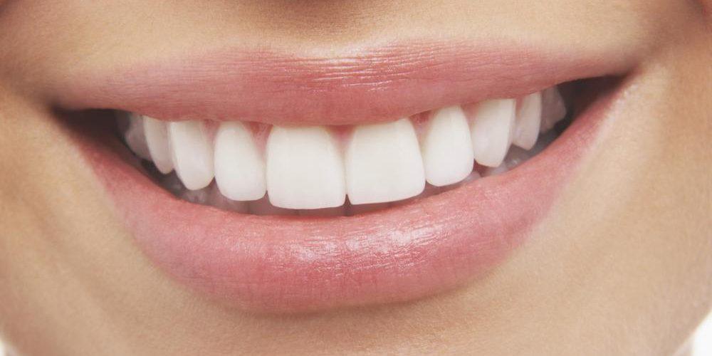 sonrisa con dientes blancos